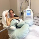 Review – Coolsculpting by Zeltiq Berlin – Fat reduction with fat freezing (Cryolipolysis)