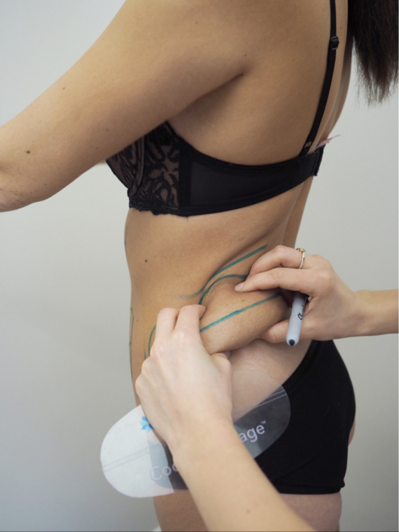 Review - Coolsculpting by Zeltiq Berlin - Fat reduction by fat freezing (Cryolipolysis)